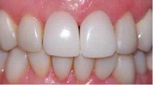 Тимчасові коронки на передні зуби