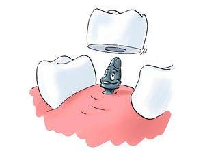 Все, що потрібно знати пацієнту про базальної імплантації зубів