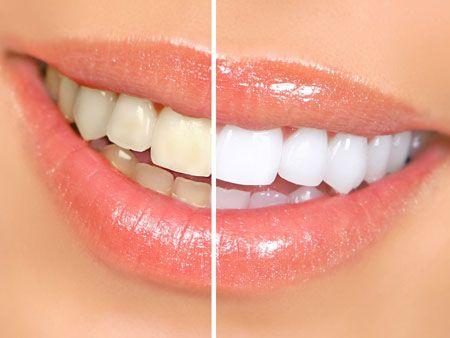 Все про лазерному відбілюванні зубів