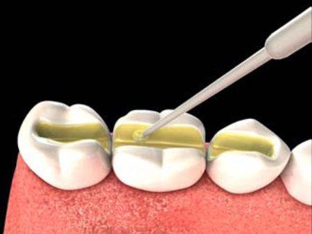 Все про процедуру шинирования зубів