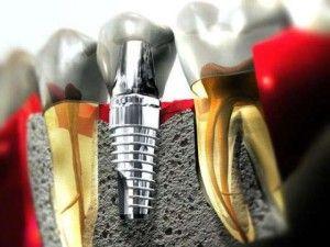 Все про зубних імплантатах