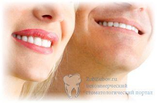 Вибираємо вініри на зуби