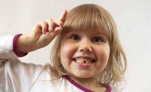 Випадання молочних зубів у дітей, схема заміни постійними