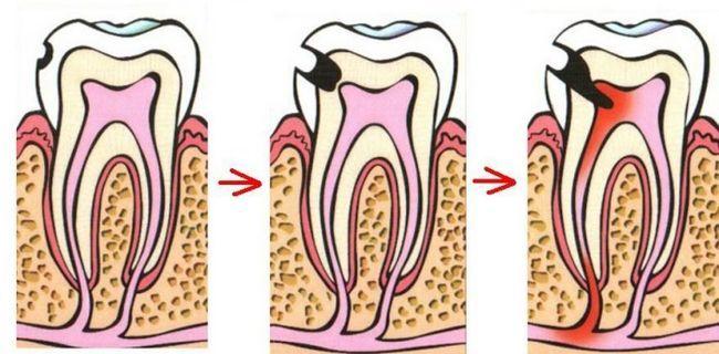 Зуб болить після видалення