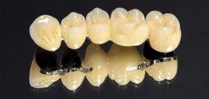 Зуб з металокераміки: ціна металокерамічної коронки, фото