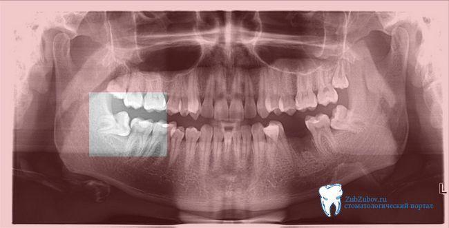 Зуб мудрості, симптоми запалення