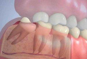 Зуб мудрості видаляти або лікувати?
