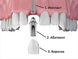 Зубні коронки на імплантатах