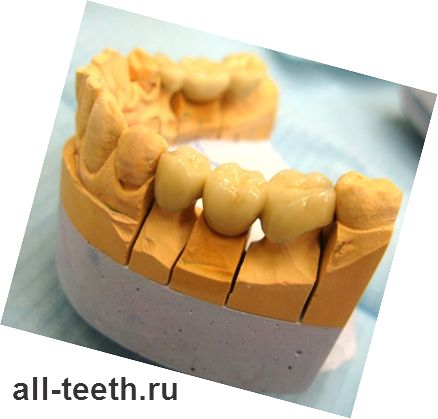 Зуби з металокераміки - плюси і мінуси