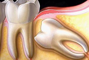Зуби мудрості: фото, правила догляду, коли їх потрібно видаляти