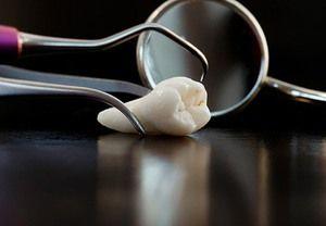 Зуби мудрості: особливості росту і видалення
